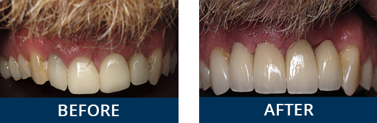 Before-and-After-Crowns-front-teeth