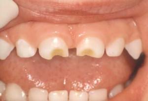 DentalCaries2_LR_521.0
