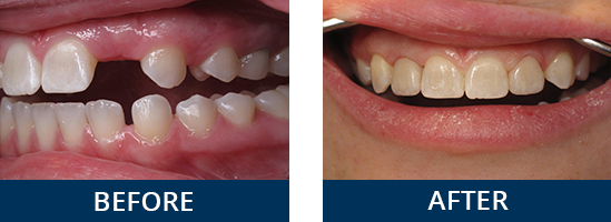 Implant-and-ceramic-crown-to-replace-missing-teeth