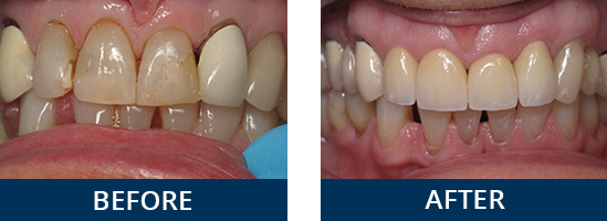 ceramic-crowns-on-front-teeth