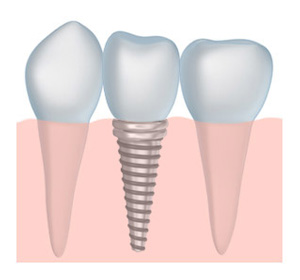 tooth implant dentistry in Derry NH and Windham NH