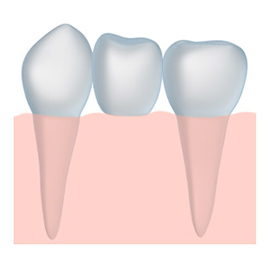 tooth crown and dental bridges Londonderry and Windham NH